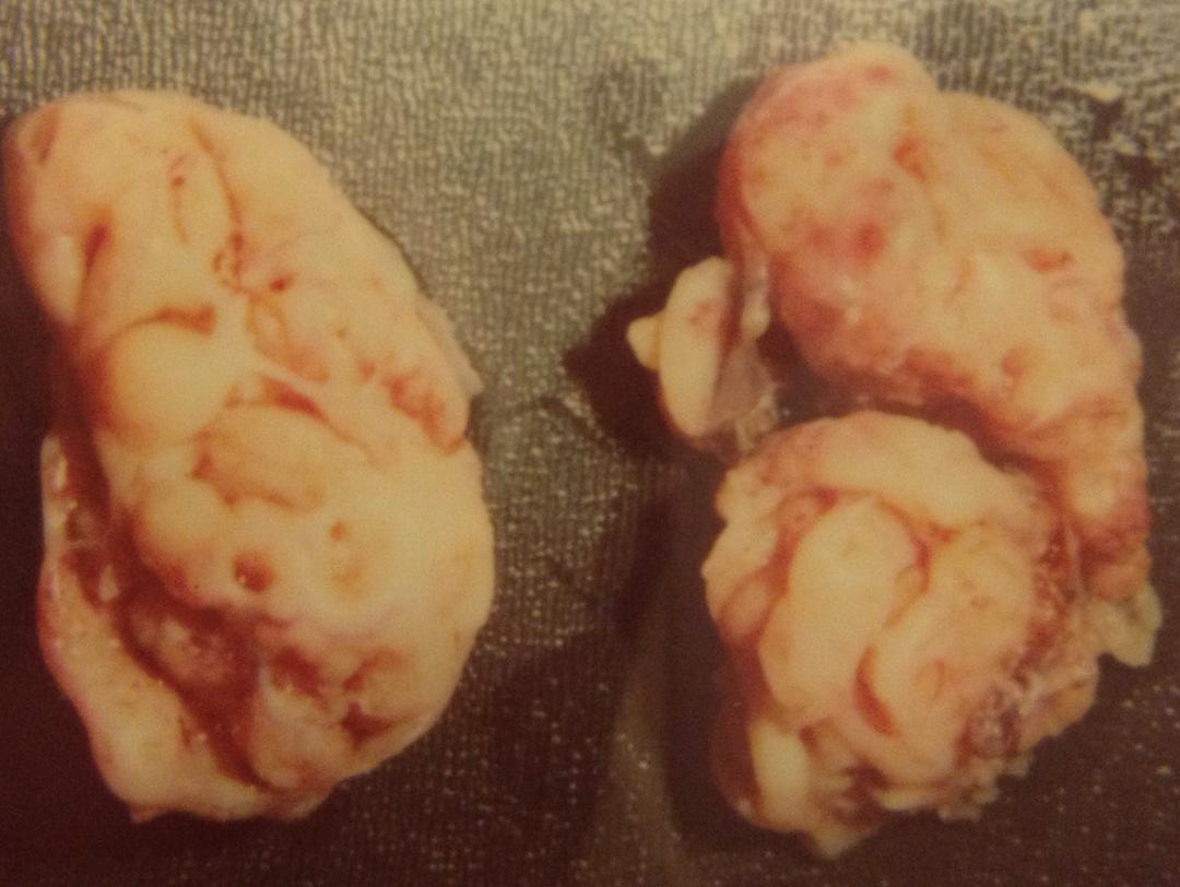 扁桃 腺 手術 子供